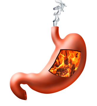 Heartburn Treatment What Causes Urinary Tract Infections